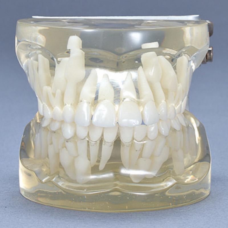 お子さんの歯を守るために①