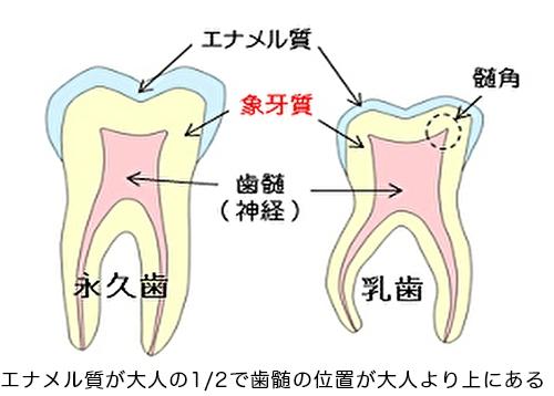 当院の小児歯科の治療